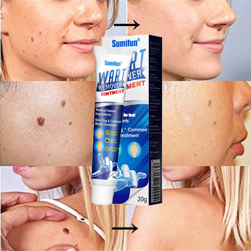 (Early Father's Day Hot Sale-48% OFF) Instant Blemish Removal Gel