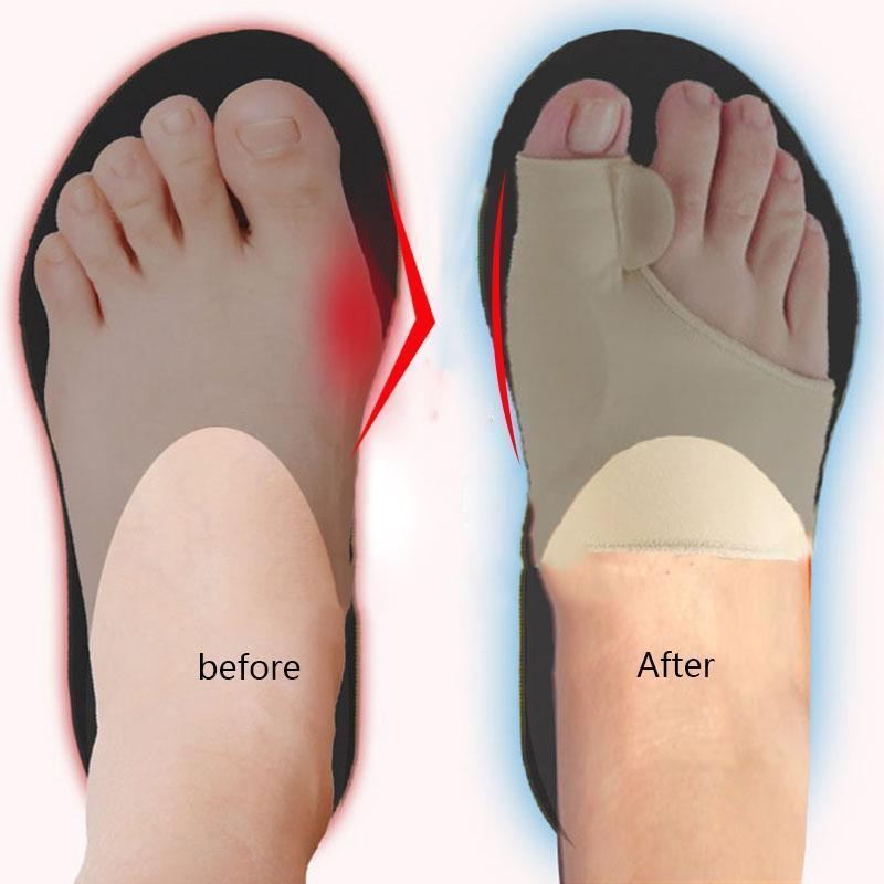 (BUY 2 GET 1 FREE!)Foot Brace ™ - Protect Your Toes