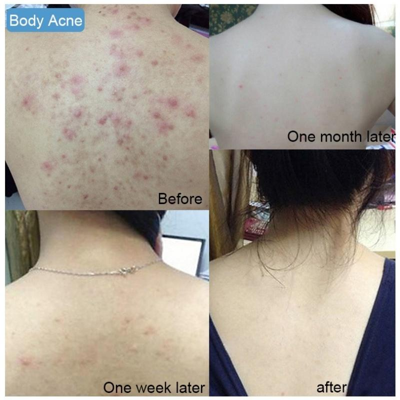 Active Enzyme Cleaner Removal Pimple Pores Acne Treatment Milk Moisturizing Face Care Wash Basis For Soap