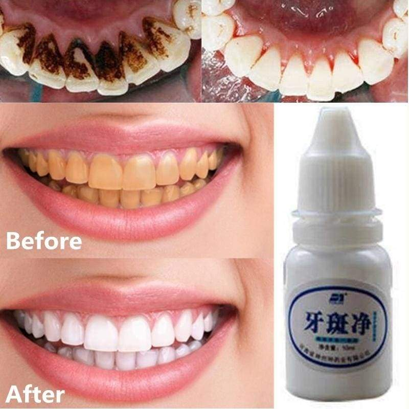 1 Bottle 10 Ml Teeth Whitening Mouth Cleaning Liquid Whitening Dental Bleaching Tools