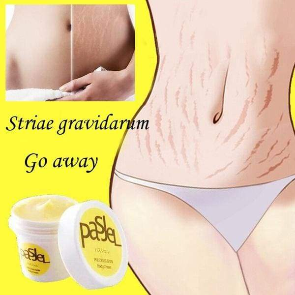 Removal Acne Scar Stretch Marks Cream Fat Scar Striae Gravidarum Treatment