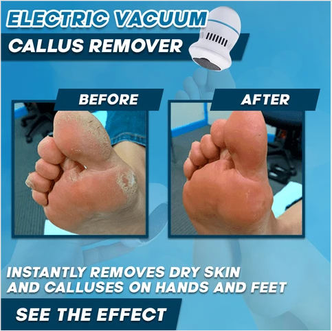 (49%OFF TODAY!!!)Electric Pedivac-remove your callus easily