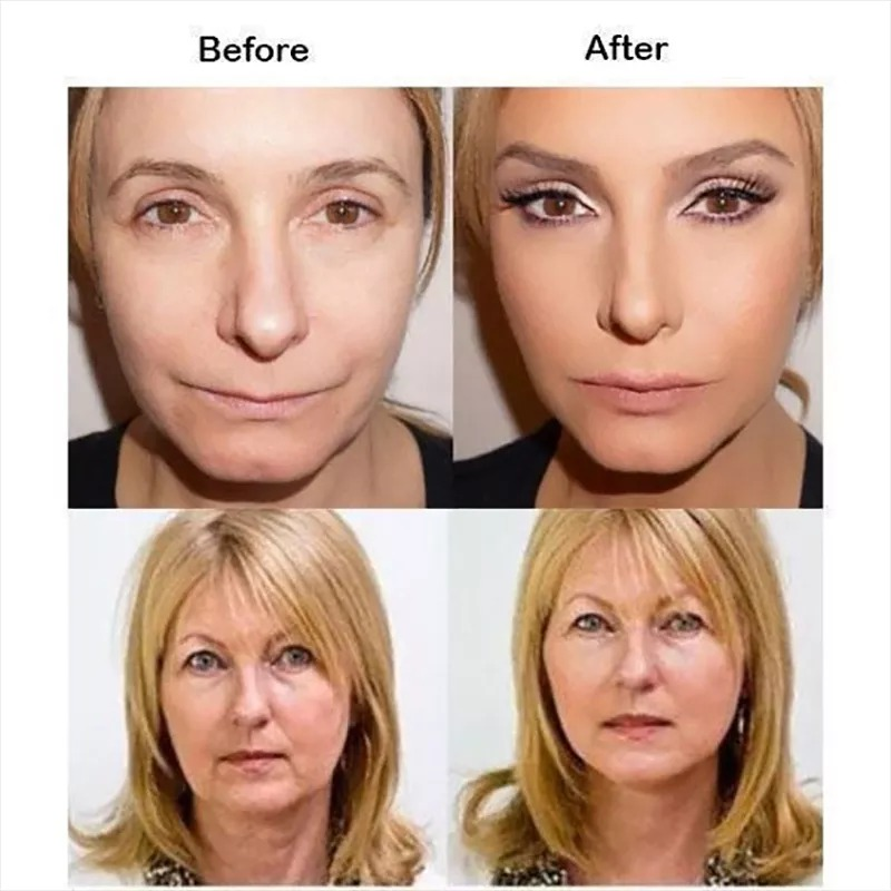 (Mid-Year Sale)Ultra Secret Lift Pro - Instant Neck Lift With Black Bands