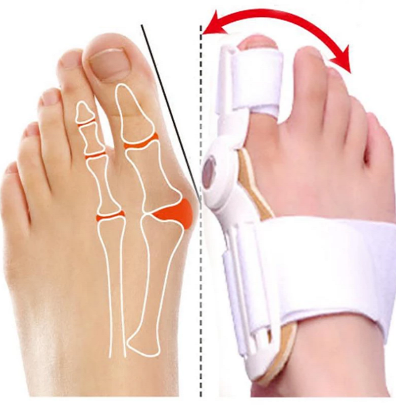 Adjustable Bunion Corrector Toe Straightener Bunion Splints