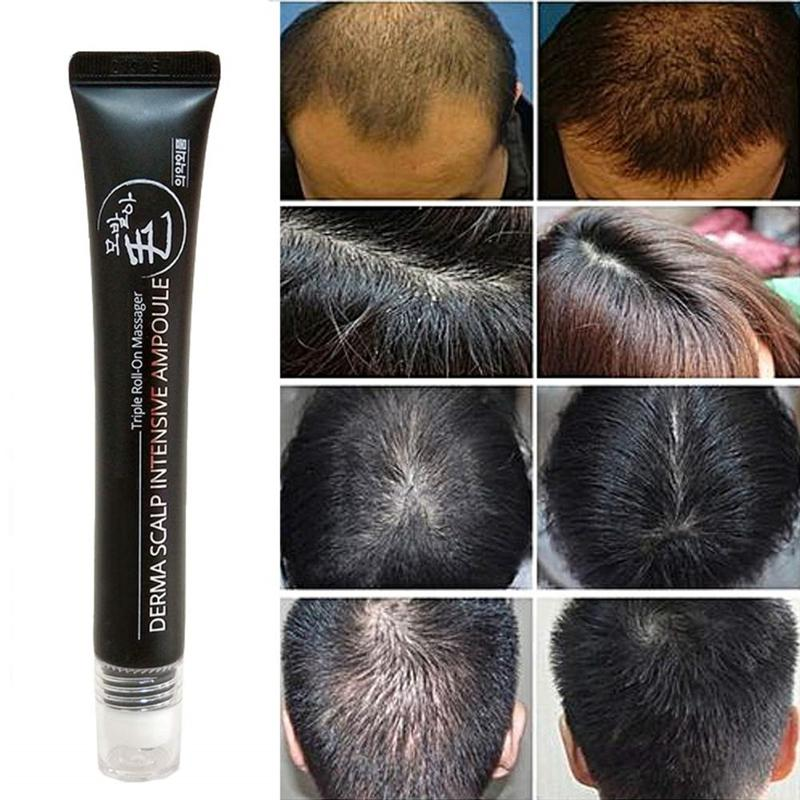 20ml Hair Growth Serum with Triple Roll Massager