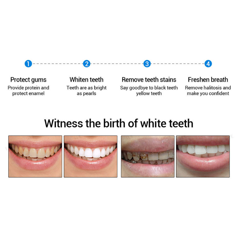 3D Teeth Whitening Pen-🔥BUY 2 FREE SHIPPING