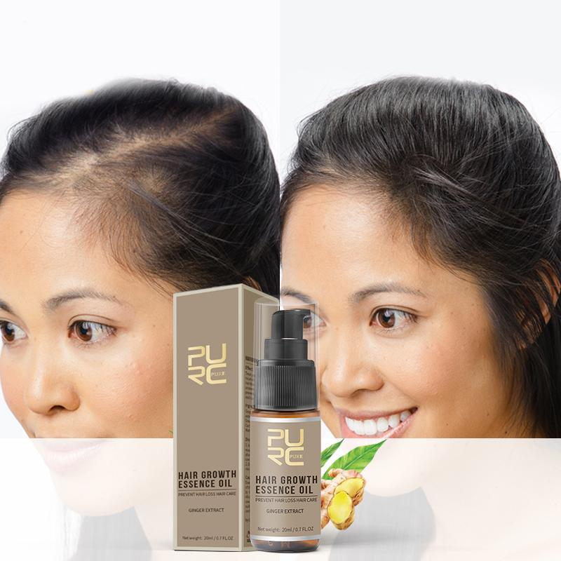 20ml Hair Growth Essence Enhance Hair Condition