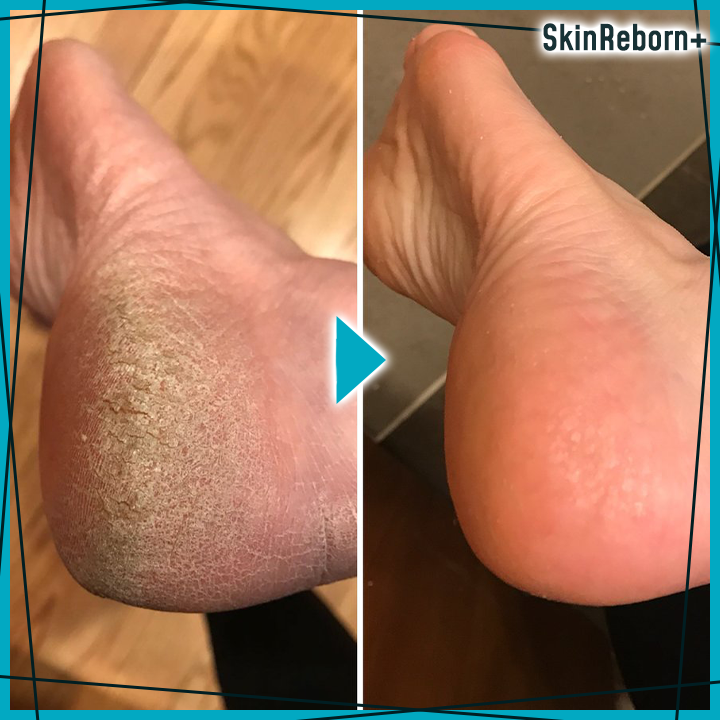 SkinReborn+ Instant Foot Peeling Spray