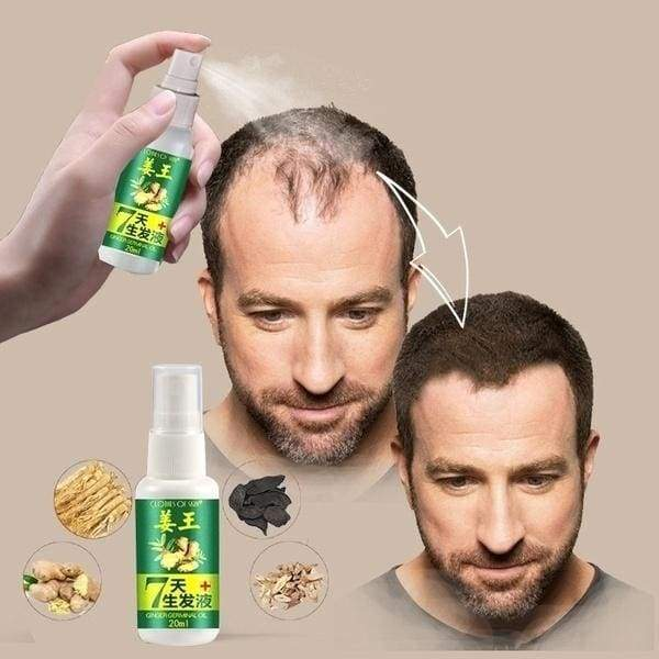 Promotional hot sale - Hair Growth Essence Rapid Hair Growth Natural Hair Loss Treatment Ginger Hair Growth Solution(10/15/20/30ML)