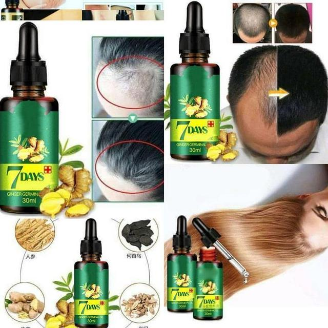 😍Regrow Your Hair In Just 7 Days!😍  100% Natural, Proven Formula