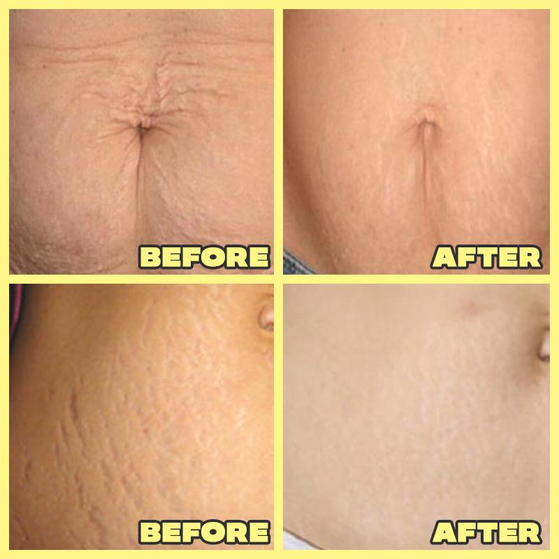 Anti-Stretchmark Cream
