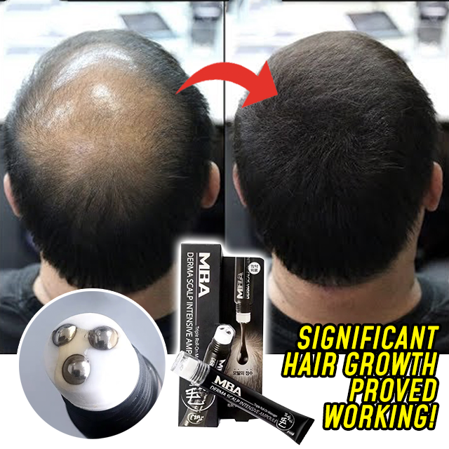 Scalp Intense™ Roll-on Hair Growth Serum【BUY 3 FREE SHIPPING】