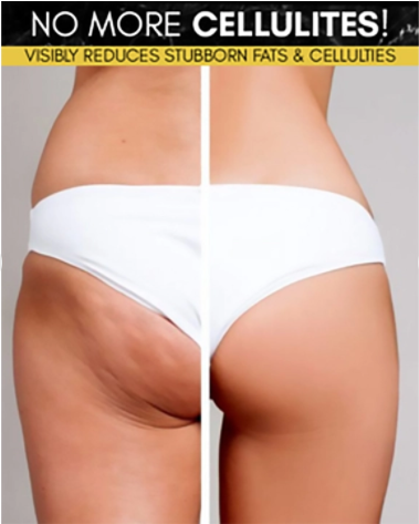 🔥BUY 3 GET 2 FREE🔥Cellulite Removal Body Fat Burning Cream
