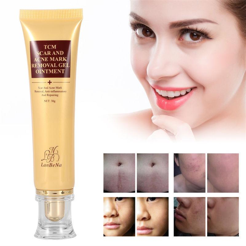(Flash sale)Youthful Scar Remover Cream 2.0