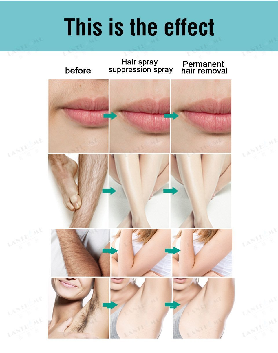 (Flash Sale)100% Natural Permanent Hair Removal Spray