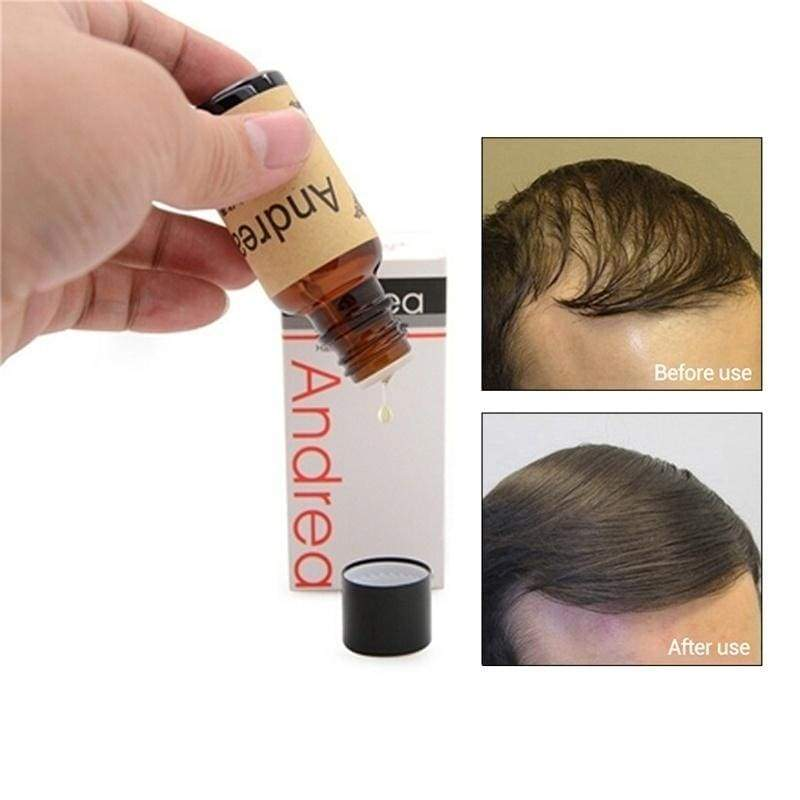 10/20ML Hair Growth Serum Effectively Prevents Hair Loss/Thinning Baldness/ Repairs Hair Follicles/Promotes Thicker/Stronger Hair Growth Essence