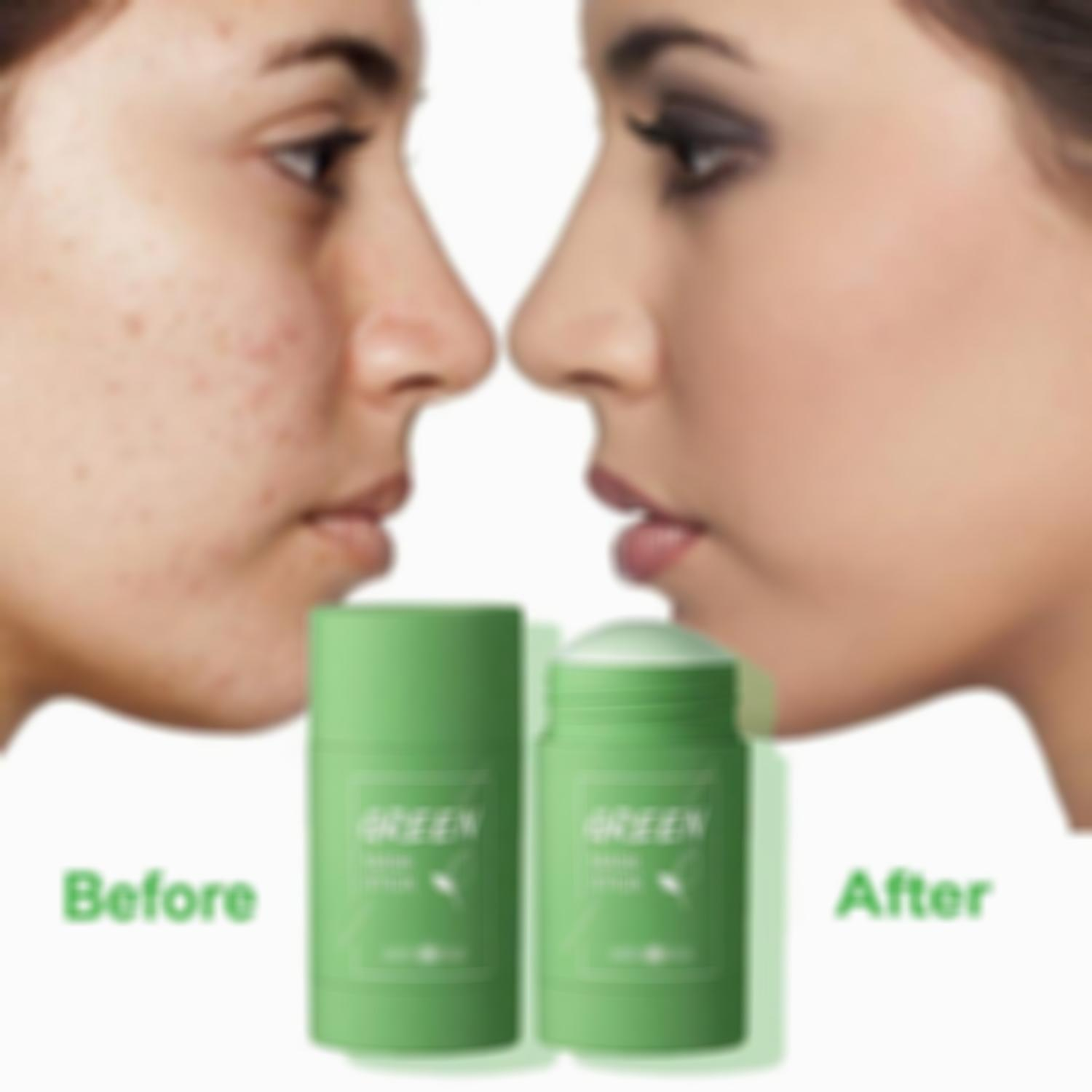 Cleansing Facial Stick For All Skin Types (Women & Men)