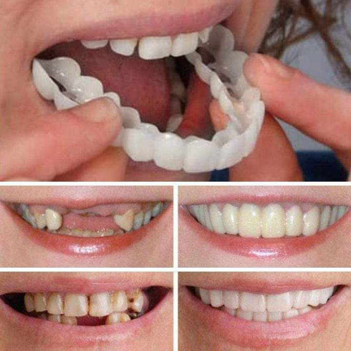 🔥HOT SELLER🔥Imported invisible braces from Germany