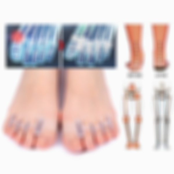 Arosetop Orthopedic Bunion Corrector Toe Separators