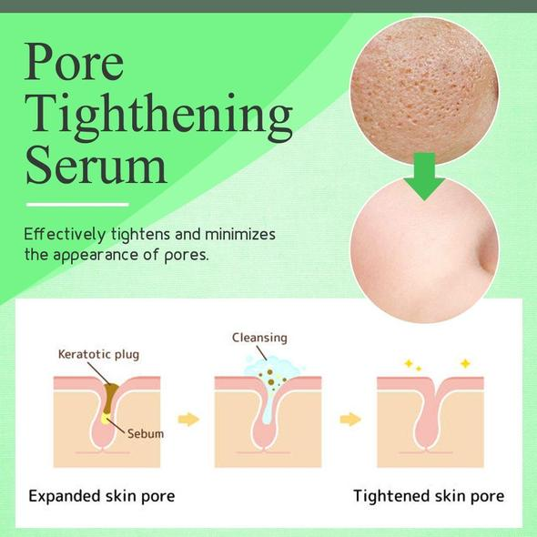 🔥 BUY 2 GET 1 FREE TODAY🔥-Greenlouch Pore Corset Serum